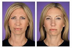 before after botox pacific dermatology center
