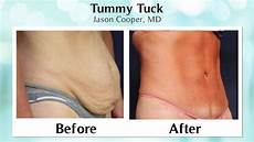 mini or which tummy tuck is right for you the
