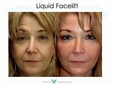 liquid facelifts houston tx dr suneel chilukuri