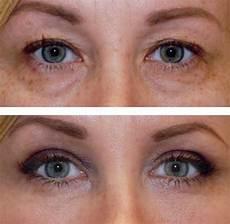 15 best plasma pen images on acne scars