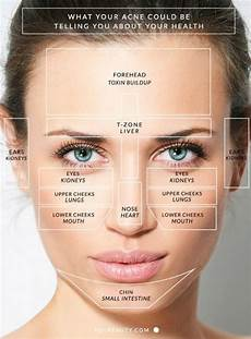 Chinese Acne Face Chart Chinese Face Mapping Skin Analysis Face Mapping Skin