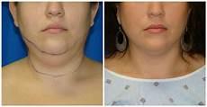 chin liposuction smartlipo in houston tx