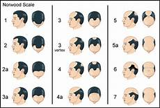 Men S Hair Loss Treatments And Solutions With Pictures