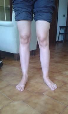 dolore parte interna ginocchio sinistro personal trainer e fisioterapista l importanza di