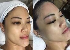 korea water shine covered bb glow skin treatment singapore