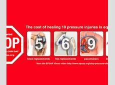 Alternating Mattress Vs Overlay for Pressure Ulcer