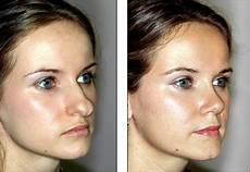 bulbous nose rhinoplasty before and after all about