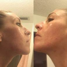 curology review for acne 5 week results
