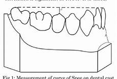 Curve Of Spee Figure 1 From Correlation Between Curve Of Spee And