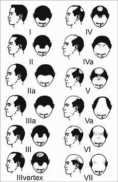 The Norwood Hamilton Classification Of Balding