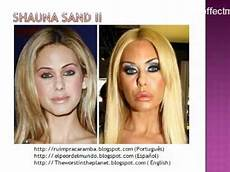 27 plastic surgery fail before after 27 cirurgia