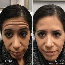 reduce wrinkles with botox before you regret 174 juvly