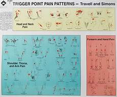 Trigger Point Injections Trigger Point Injection