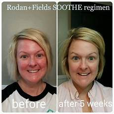 redness with rodan fields soothe regimen glowing