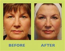liquid facelift non surgical facelift in wi