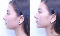 non surgical chin augmentation with dermal filler before