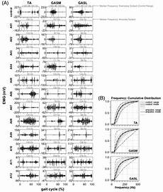 My Emg Chart Muscle Activation Patterns During Walking From Transtibial