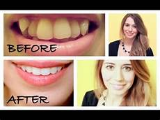 my invisalign experience before after