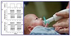 Gavage Feeding Preterm Infant Receiving Pulsed Ntrainer Stimulation