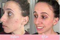 curology custom acne treatment review uncover the glow