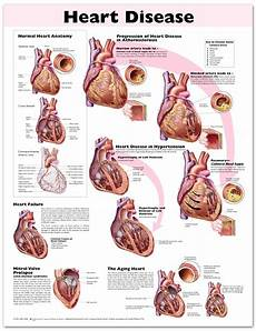 Heart Health Chart Heart Disease Chart Poster Laminated 9780781773386