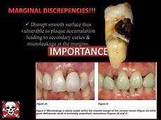 Crown Margin Design Different Gingival Finish Lines Margins Of Crowns And