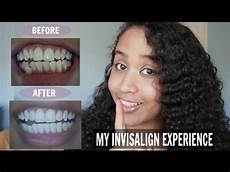 invisalign review before after pictures acceledent