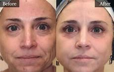 laser bbl treatments the vein center