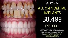 All On 4 All On 4 Dental Implants Mexico In Just 2 Visits Youtube