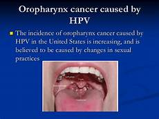 Oropharynx Cancer Information For The Patient On Human Papilloma Virus Hpv