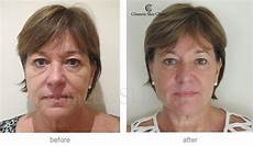 tear trough fillers before and after photos