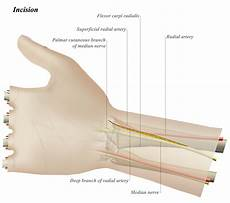 Fcr Tendon Fcr Approach To Distal Radius Approaches Orthobullets