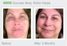 rodan and fields product page 3 redefined u
