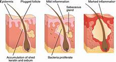 Integumentary System Diseases Diseases Disorders And Injuries Of The Integumentary