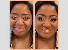 Natural Vitiligo Treatment System Review: DOES IT REALLY WORK?