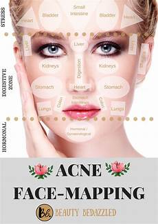 Chinese Acne Face Chart Acne Face Mapping What Does Your Acne Tell You Face