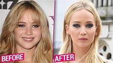 before after plastic surgery makeover