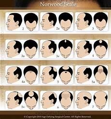 Norwood Scale Chart New Hair Transplant Methods