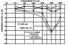 Hearing Loss Frequency Chart Medical Science Does The Range Of Sound We Can Hear