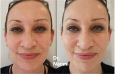 cheek fillers before and after sydney dermal filler clinic