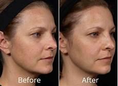 clear brilliant in tulsa ok at skin care institute
