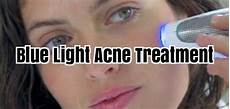 Acne Blue Light At Home Blue Light Acne Treatment Light Therapy For Acne
