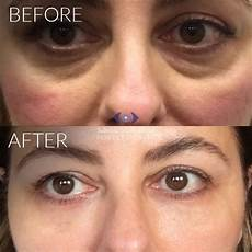 tear trough fillers a solution to circles eye bags