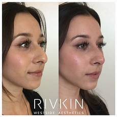 side angle of before and after non surgical nose with