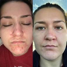 curology before and after