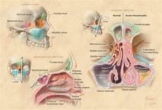 Sinus Anatomy Alison Burke Anatomy Of Paranasal Sinuses And Nasal