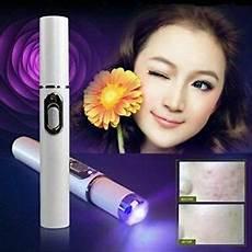 Kd 7910 Blue Light Acne Treatment Acne Laser Pen Wrinkle Removal Blue Light Therapy Kd 7910