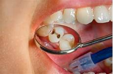 Dental Caries Raman Spectroscopy In The Characterisation Of Carious