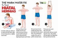 Hiatal Hernia Diet Chart Home Remedies For Hiatal Hernias Top 10 Home Remedies