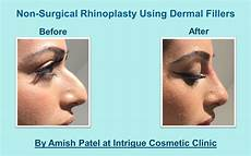 non surgical nose treatment information before